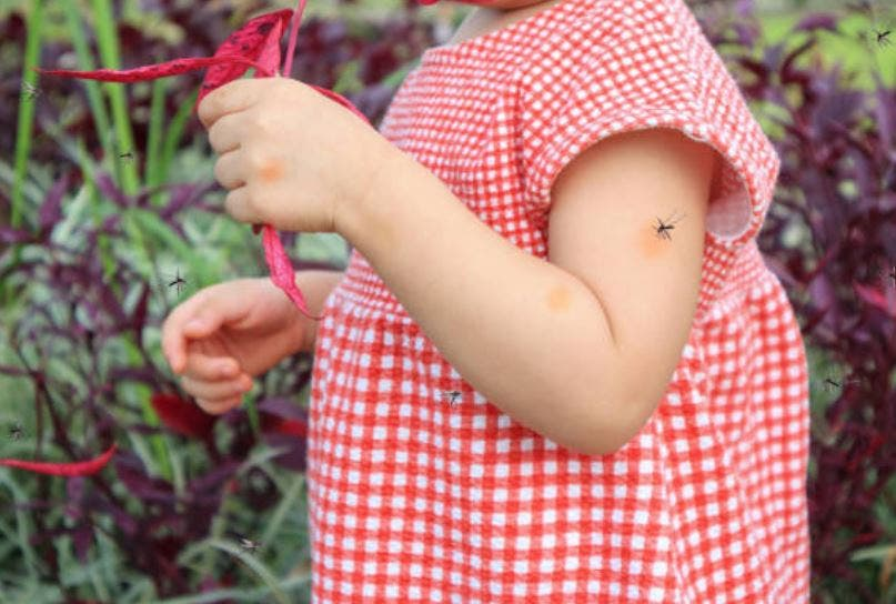 Repelente de mosquitos casero: 3 recetas