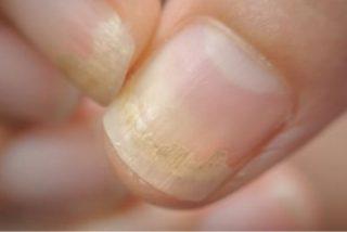 Remedios caseros para las uñas amarillas