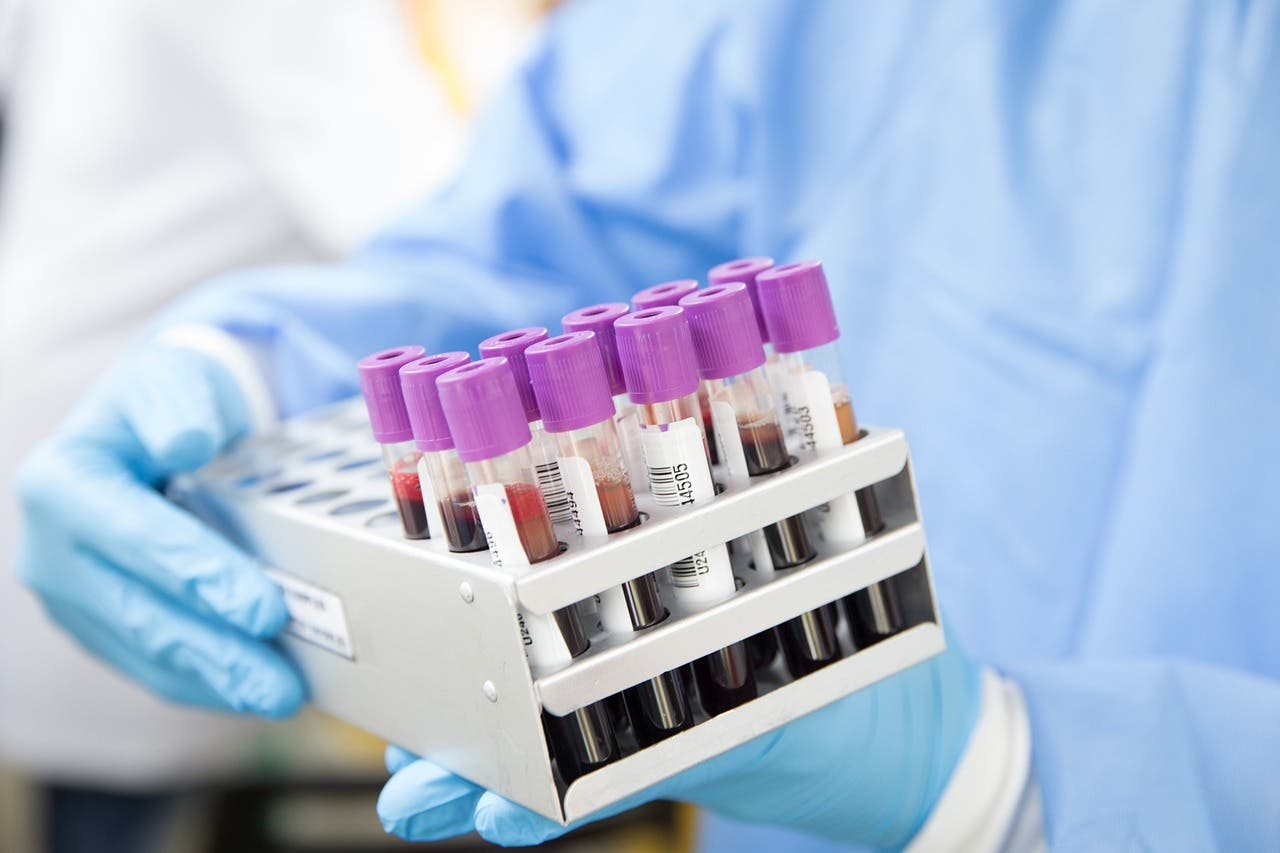 Varios estudios determinan que las probabilidades de padecer Covid-19 dependen de tu grupo sanguíneo