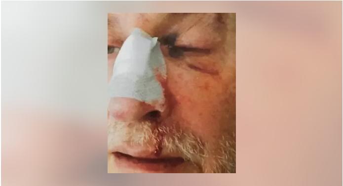 Un recluso agrede brutalmente a un funcionario de la prisión de Asturias