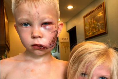 """Un niño enfrenta a un agresivo perro para salvar a su hermana menor: """"Si alguien debía morir, tenía que ser yo"""""""