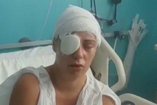 La Policía atrapa al marroquí que lanzó sosa cáustica a la cara de una mujer y a su hija
