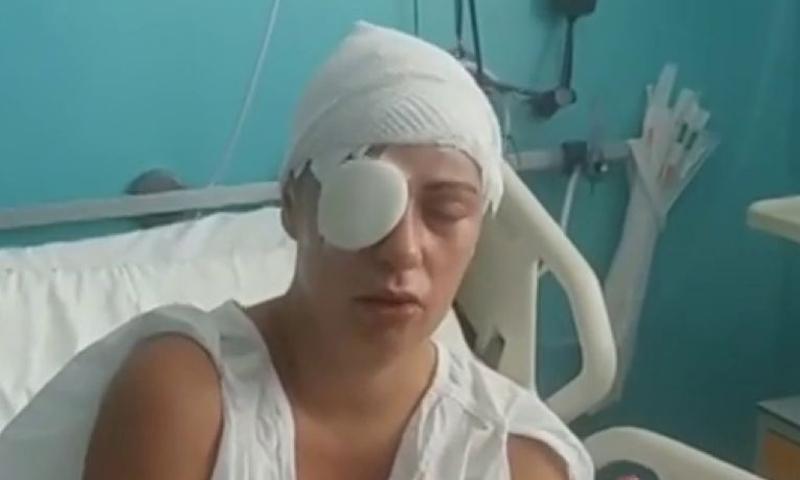 Marruecos es un cáncer para España - Página 21 La-mujer-atacada-con-sosa-cáustica-por-un-acosador-marroquí