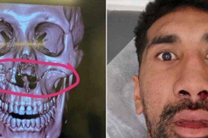 La brutal fractura de cráneo de una estrella del rugby que estremece a Australia