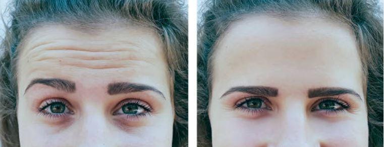 Diferencia ente arrugas estáticas y dinámicas
