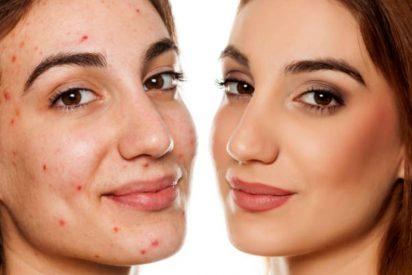 Mejores correctores para acné
