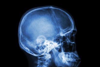 Mata a su esposa rompiéndole el cráneo, pero cuenta a Emergencias que se ahogó con una espina