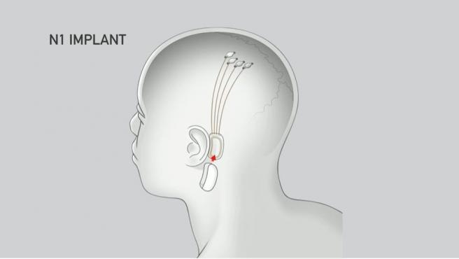 Neuralink, el proyecto de Elon Musk que conectará el cerebro a un ordenador