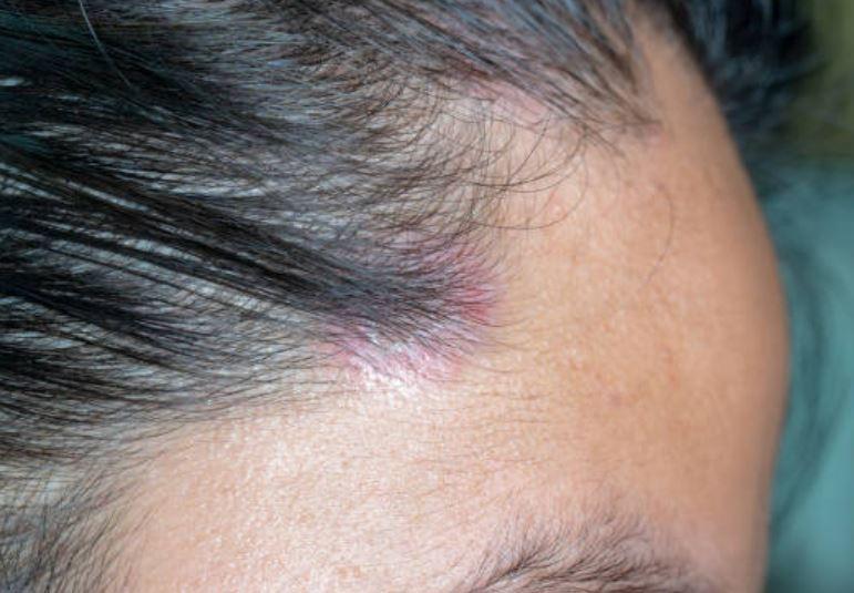 psoriasis en el pelo