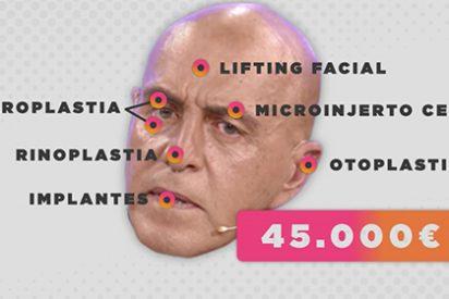 En 'Viva la vida' pintan la cara a su colaborador Kiko Matamoros por haberse gastado 45.000 euros en arreglársela