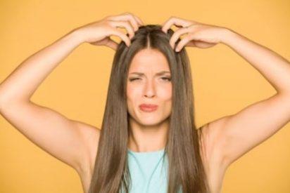 Picor en el cuero cabelludo, remedios caseros