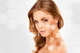 mejorar el tono desigual de la piel