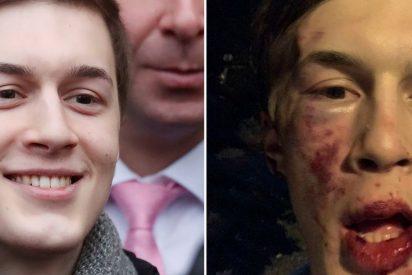 Un reconocido periodista ruso por sus críticas a Vladimir Putin fue brutalmente golpeado en Moscú