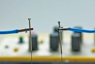 Un estudio de Harvard dice que la electroacupuntura puede ayudar a los pacientes con Covid-19