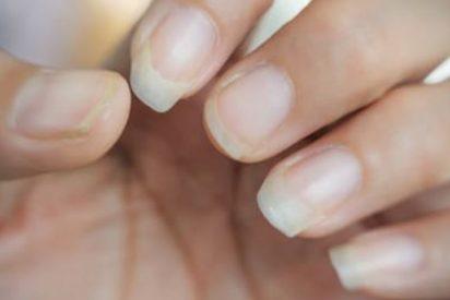 ¿Qué tomar cuando se rompen las uñas?