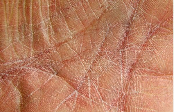 xerosis en la piel