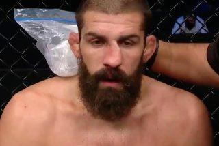 Court McGee se arregla la nariz rota en pleno combate dejando boquiabierto a su rival