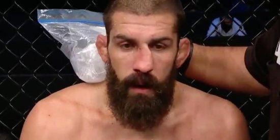 Court McGee se arregla la nariz rota en pleno combate de UFC dejando boquiabierto a su rival