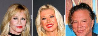 Hollywood: cirugías estéticas que salieron 'rana' y nunca mejor dicho
