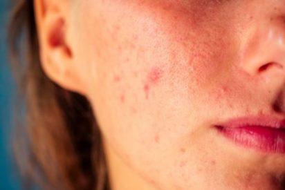 Acné hormonal causas