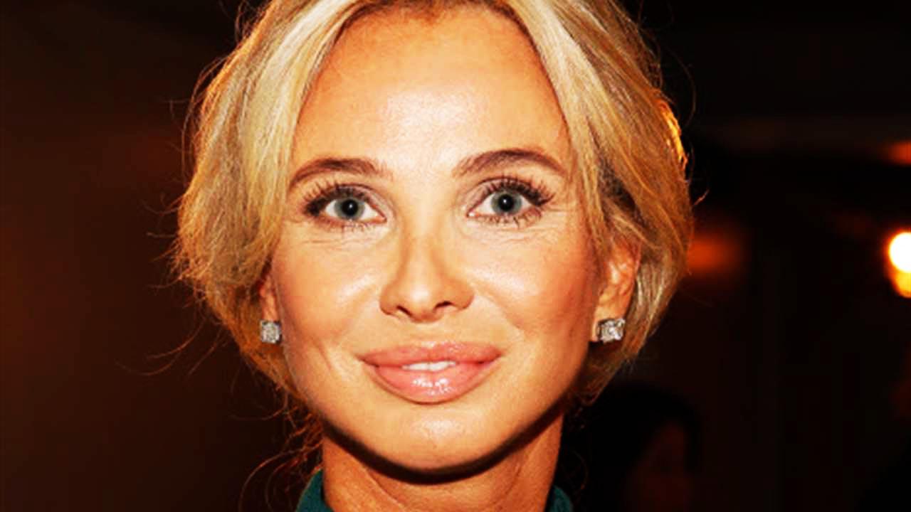 """¿Qué le ha pasado al rostro de Corinna Larsen?: """"Tiene la ceja derecha totalmente disparada"""""""