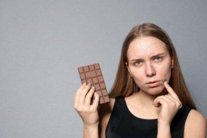 Alimentos malos para el acné