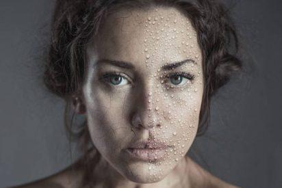¿Cuál es la diferencia entre piel seca y deshidratada?