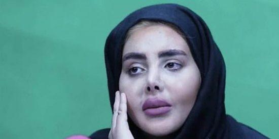 Los ayatolas amigos de Podemos exhiben a la 'Angelina Jolie iraní' en TV y está irreconocible