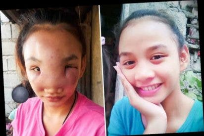 Esta adolescente se aprieta un grano y se le desfigura así la cara