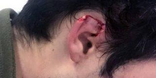 Arranca un trozo de la oreja de su hermano con un mordisco y acaba detenido