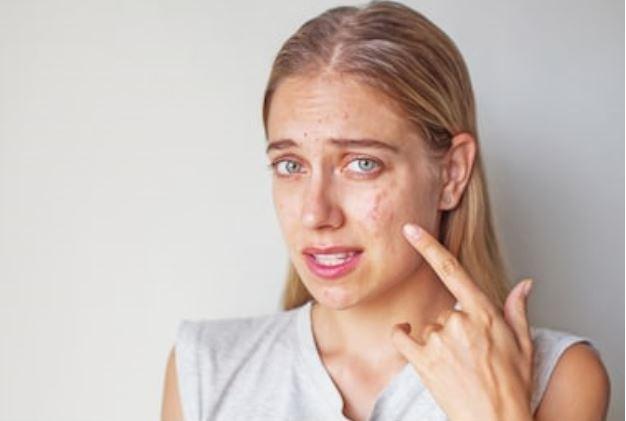 mejorar las cicatrices del acné
