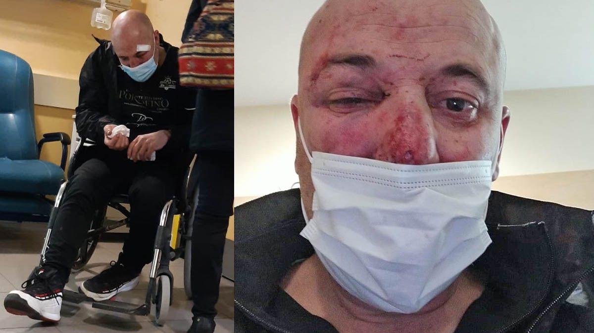 El paisano al que dieron una paliza dos policías en Linares declara como investigado por lesiones a los agentes