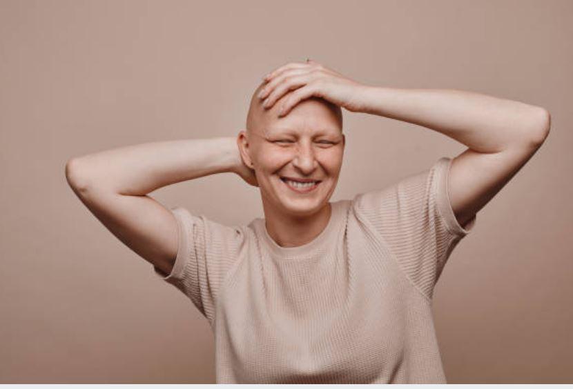 Cómo cuidar una cabeza calva