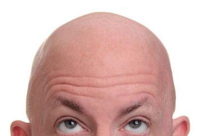 Cuidar una cabeza calva