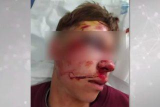 Una banda de facinerosos propina, por error, una paliza a un chaval al que tendrán que reconstruir el rostro