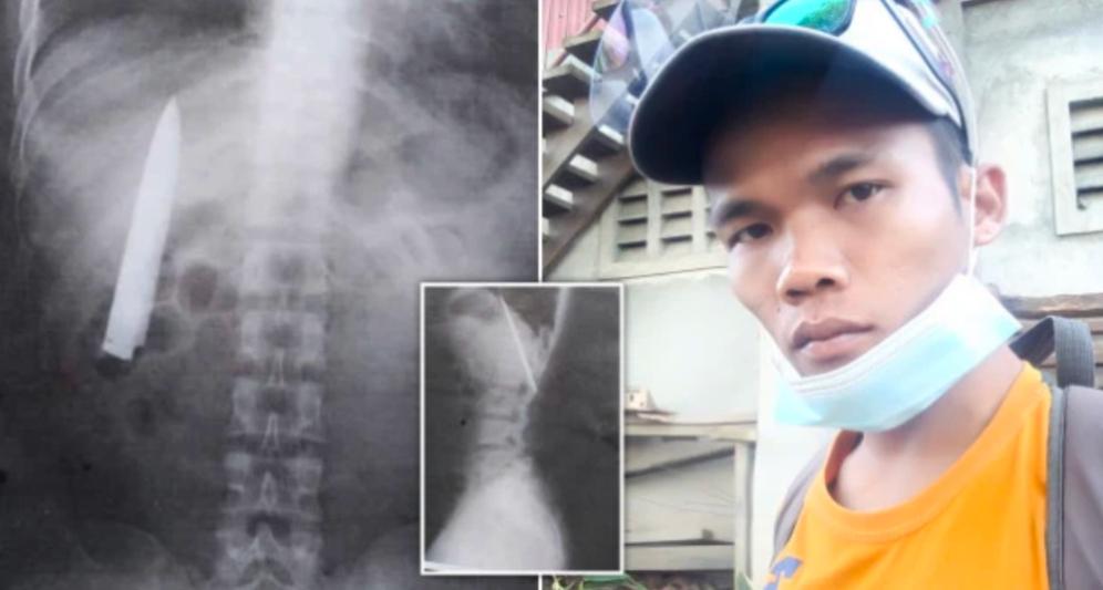 Este tipo descubre la hoja del cuchillo dentro de su pecho, 14 meses después de ser apuñalado