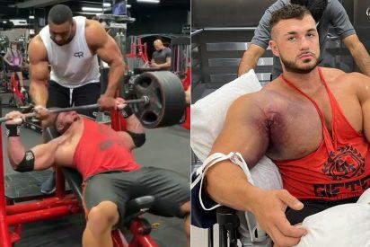 """El escalofriante instante en que se lesiona Ryan Crowley: """"Me arranqué completamente el tendón pectoral del hueso"""""""