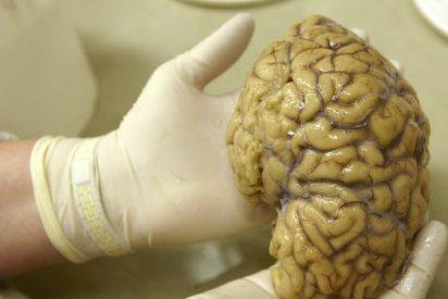 Aparece una misteriosa enfermedad cerebral que tiene estupefactos a los médicos