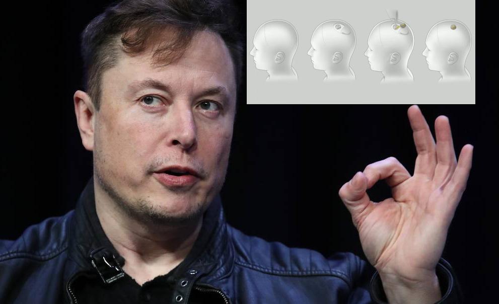 """Elon Musk: """"A fin de año podremos implantar Neuralink en cerebros humanos"""""""