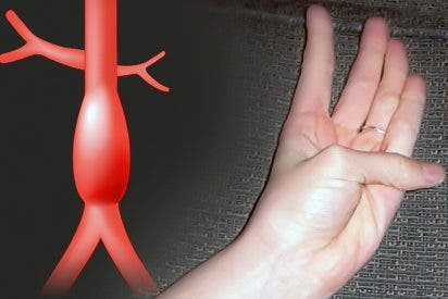Cómo saber si tenemos problemas de corazón graves moviendo un solo dedo
