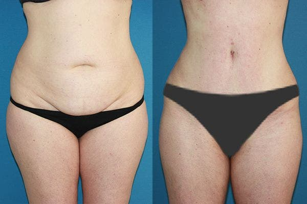 Abdominoplastia Tulua HD, lo último en cirugía estética para corregir el abdomen y crear un nuevo ombligo
