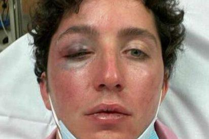 El 'pequeño Nicolás', ingresado de urgencia en un hospital tras recibir una brutal paliza de un vigilante