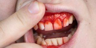 Una cuadrilla de marroquíes arranca los dientes a una chica durante un atraco en plena Puerta del Sol