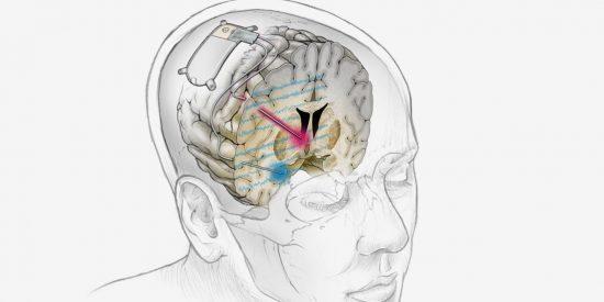 Implantan un dispositivo cerebral a una paciente que permite tratar por primera vez con éxito la depresión